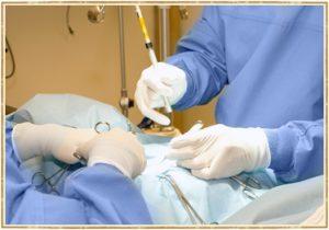 Laser Surgery